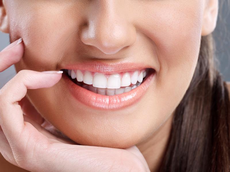 Dentisti Milano - Sbiancamento Dentale - Clinica Boggian