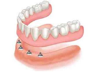 Protesi Dentali Milano - Clinica Odontoiatrica Boggian